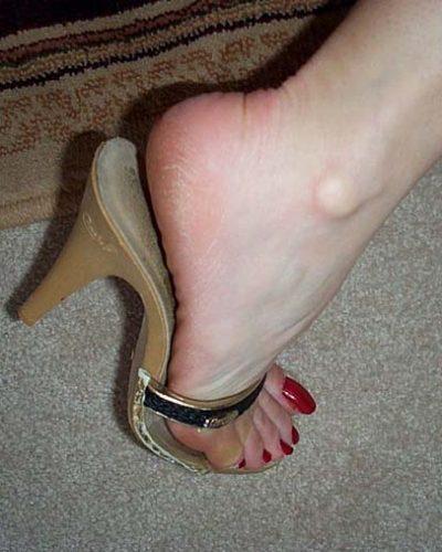 jen's long toenails